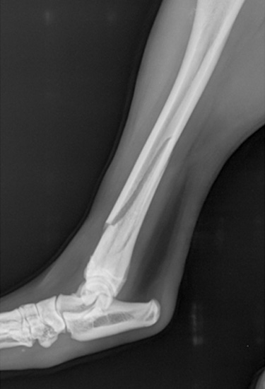 Comminuted-fracture-01
