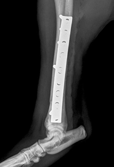 Comminuted-fracture-04
